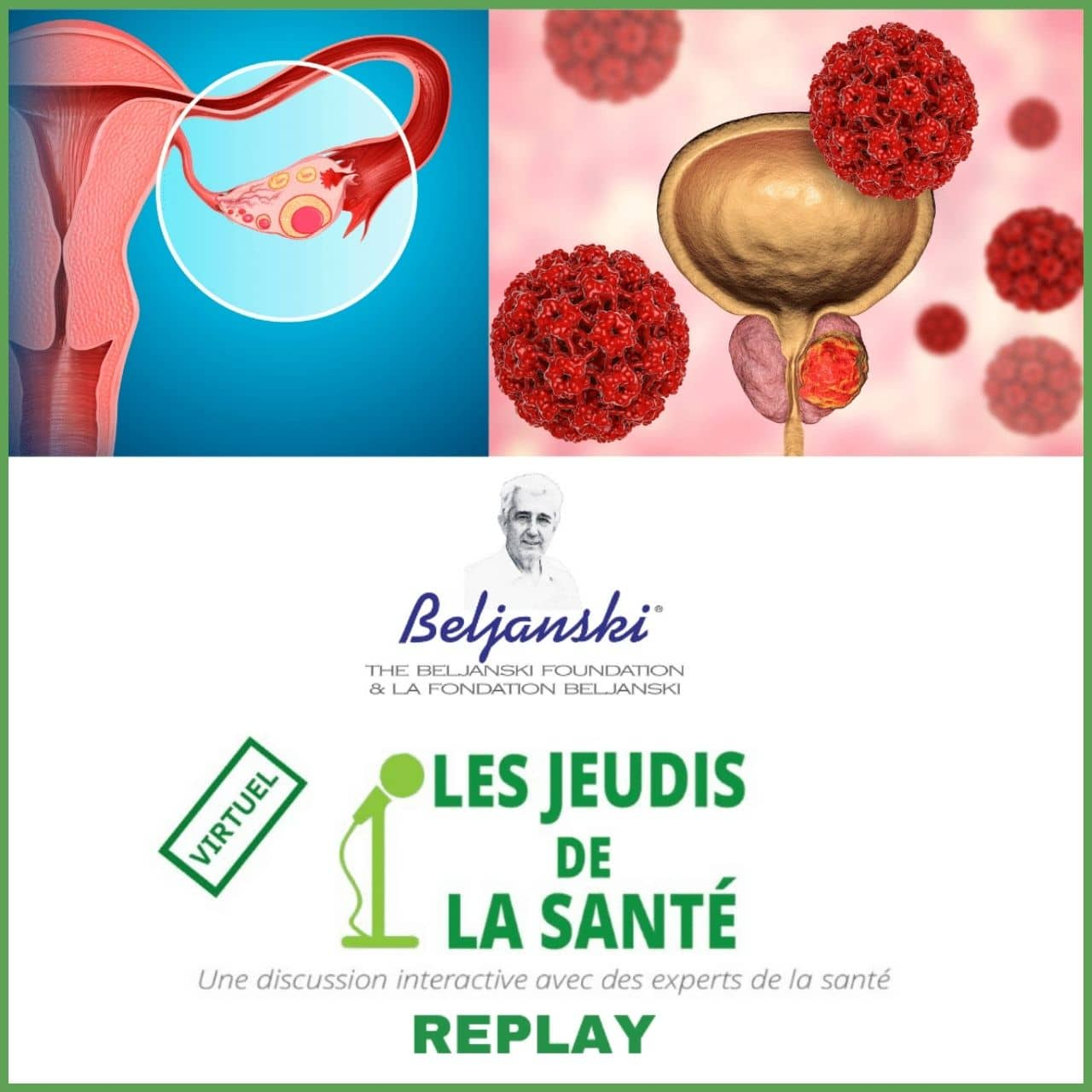 replay prostate ovarian cancer